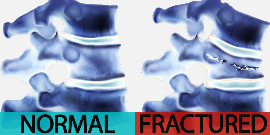 Normal Vertebrae vs. Fractured Vertebrae
